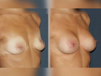 Aumento senos - 631889