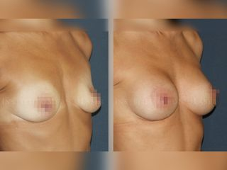 Mamoplastia con prótesis