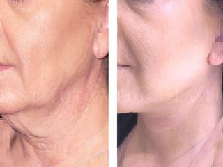 antes y despues lifting facial