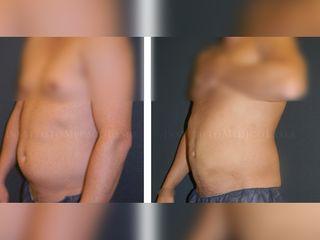 Grasa abdominal con Lipoláser, antes y después