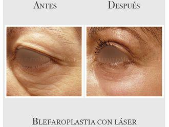 Blefaroplastia-635071