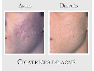 Tratamiento antiacné-635072