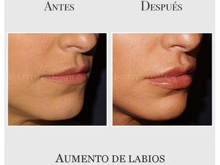 Aumento y perfilado de labios con ácido hialurónico