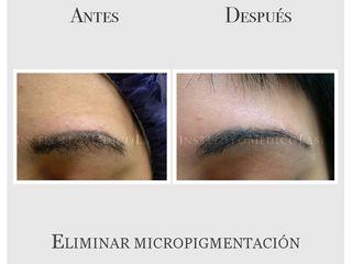 Eliminación de micropigmentación en cejas