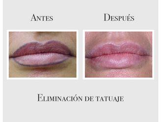 Eliminación de tatuajes - 635075