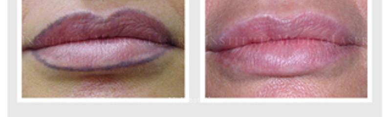 antes-despues-micropigmentaciones