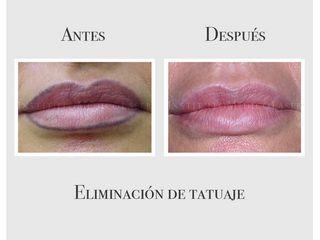 Eliminación de micropigmentación en labios