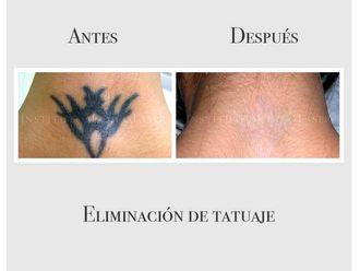 Eliminación de tatuajes - 635076