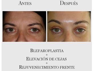 Blefaroplastia-639357