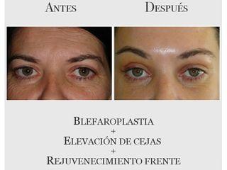 Blefaroplastia + Elevación de Cejas + Rejuvenecimiento de la frente