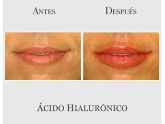 Ácido hialurónico-639360