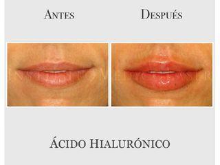 Perfilado e hidratación de labios con ácido hialurónico