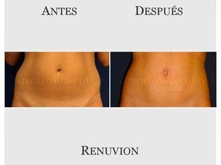 abdomen renuvion antes y despues
