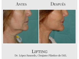 Lifting del tercio inferior facial