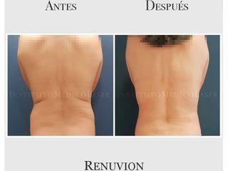 Rollitos de la espalda, antes y después