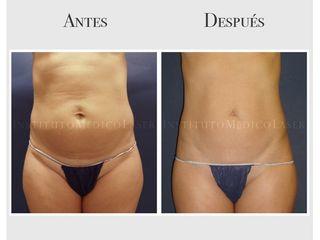 Abdomen, antes y después