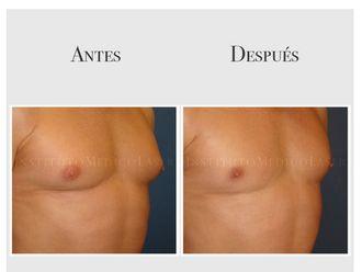 Cirugía estética-643699