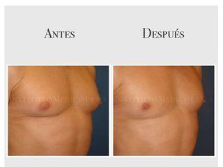 Tratamiento de la ginecomastia, antes y después