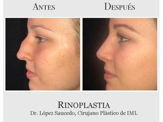 Rinoplastia, antes y después