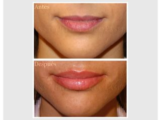 Ácido hialurónico en labios, antes y después