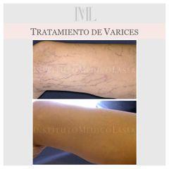 Tratamiento de Varices Sin Cirugía, antes y después en IML