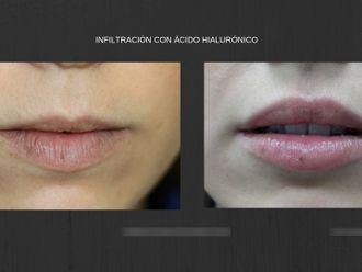 Ácido hialurónico-663014