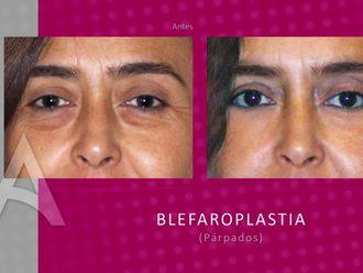 Blefaroplastia-176931