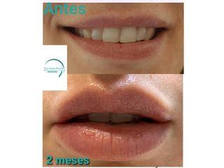 Dra. Aurea Hurtado - Aumento de labios