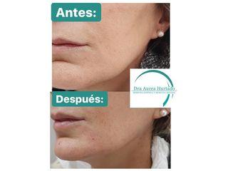 Dra. Aurea Hurtado - Peeling