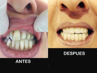 antes y después Estética dental