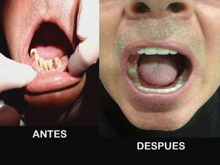 antes y después Rehabilitación oral
