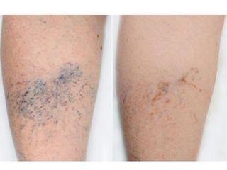 Antes y después Tratamiento de varices mediante esclerosis