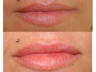 Aumento labios-501075