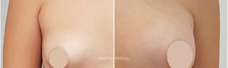 Corrección de Mama Tuberosa