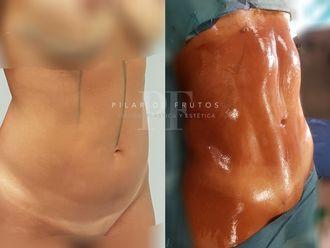 Marcación abdominal-626124