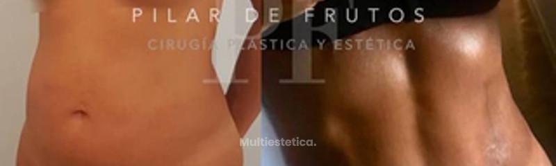 Dra. Pilar De Frutos