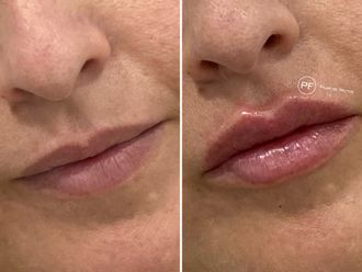 Aumento labios-687060