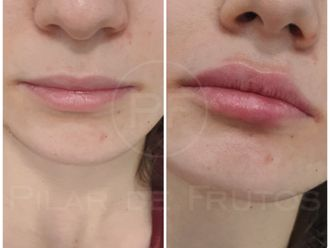 Aumento labios-687064