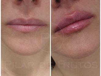 Aumento labios-687067