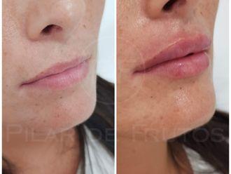 Aumento labios-687071