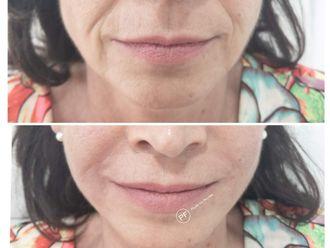 Rejuvenecimiento facial-687077