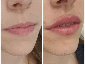 Aumento labios-687089