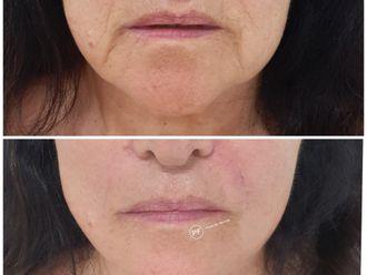 Rejuvenecimiento facial-687090