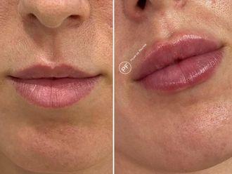 Aumento labios-687092