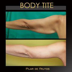 Body Tite - Dra. Pilar De Frutos
