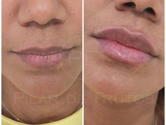Aumento labios-697055