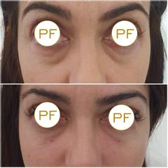 Eliminación de ojeras - Dra. Pilar De Frutos