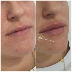 Aumento de labios - Dra. Pilar De Frutos