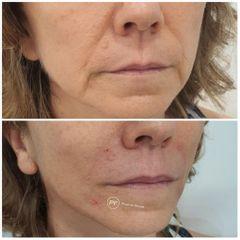Rejuvenecimiento facial - Dra. Pilar De Frutos
