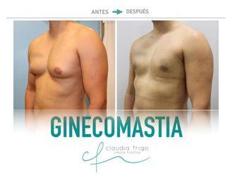 Ginecomastia-742001